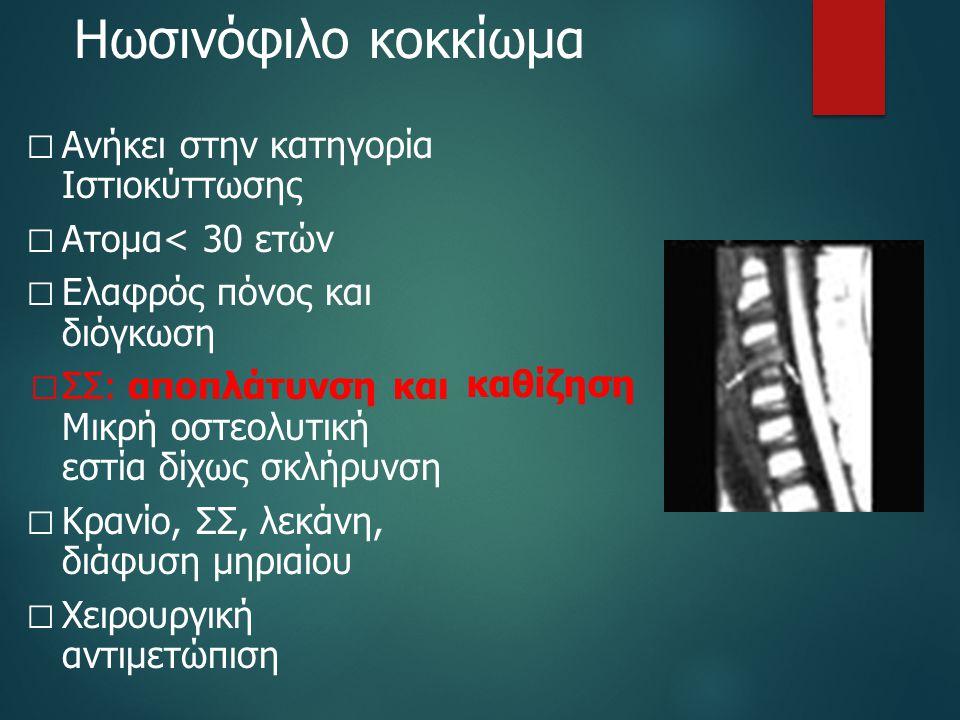 Ηωσινόφιλο κοκκίωμα Ανήκει στην κατηγορία Ιστιοκύττωσης