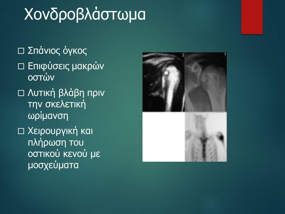 Χονδροβλάστωμα Σπάνιος όγκος Επιφύσεις μακρών οστών