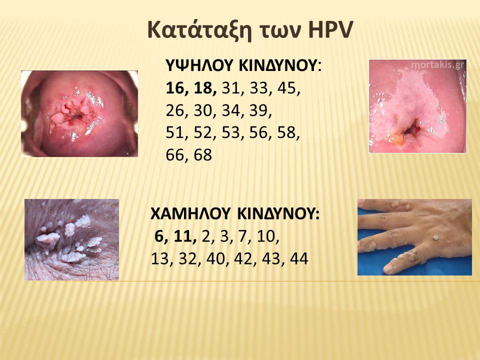 Κατάταξη των HPV ΥΨΗΛΟΥ ΚΙΝΔΥΝΟΥ: 16, 18, 31, 33, 45, 26, 30, 34, 39,