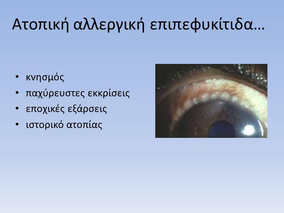 Ατοπική αλλεργική επιπεφυκίτιδα…