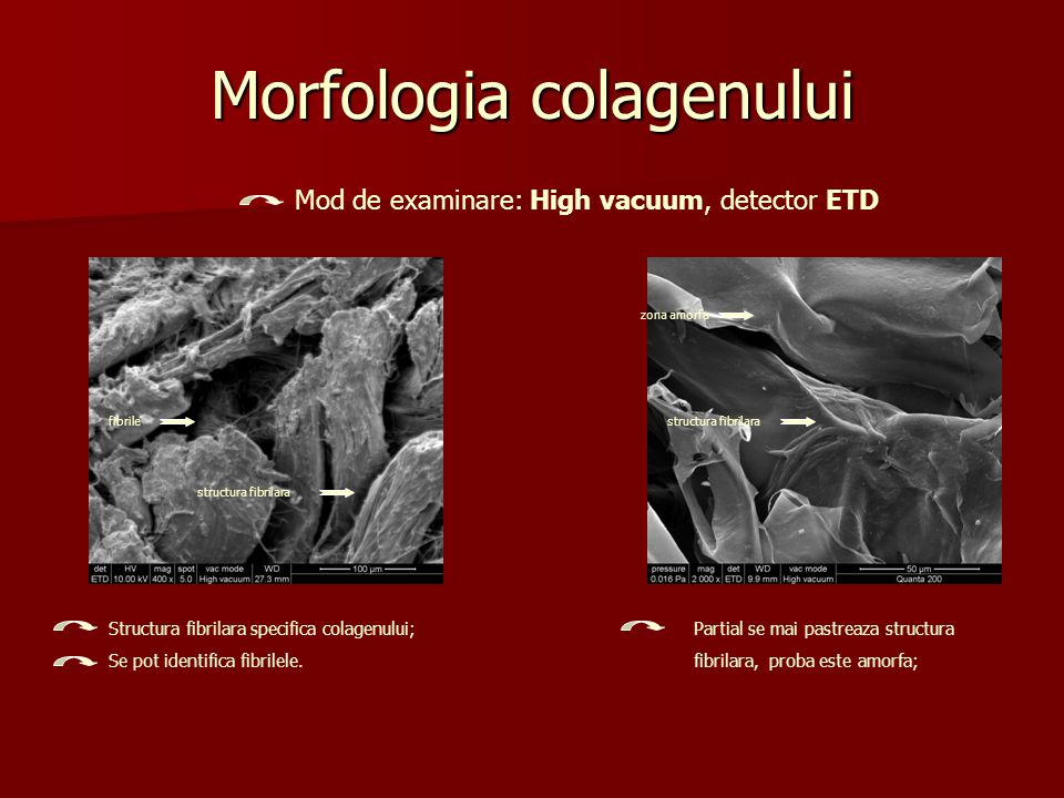 Morfologia colagenului