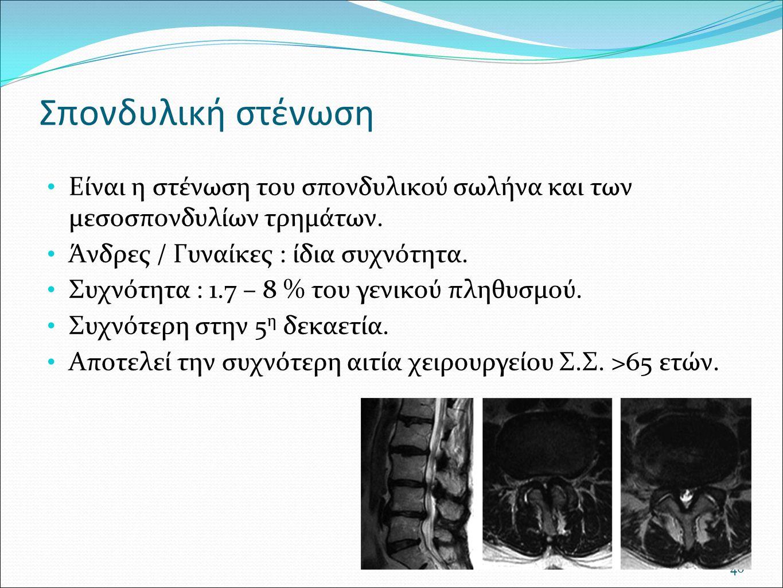 Σπονδυλική στένωση Είναι η στένωση του σπονδυλικού σωλήνα και των μεσοσπονδυλίων τρημάτων. Άνδρες / Γυναίκες : ίδια συχνότητα.