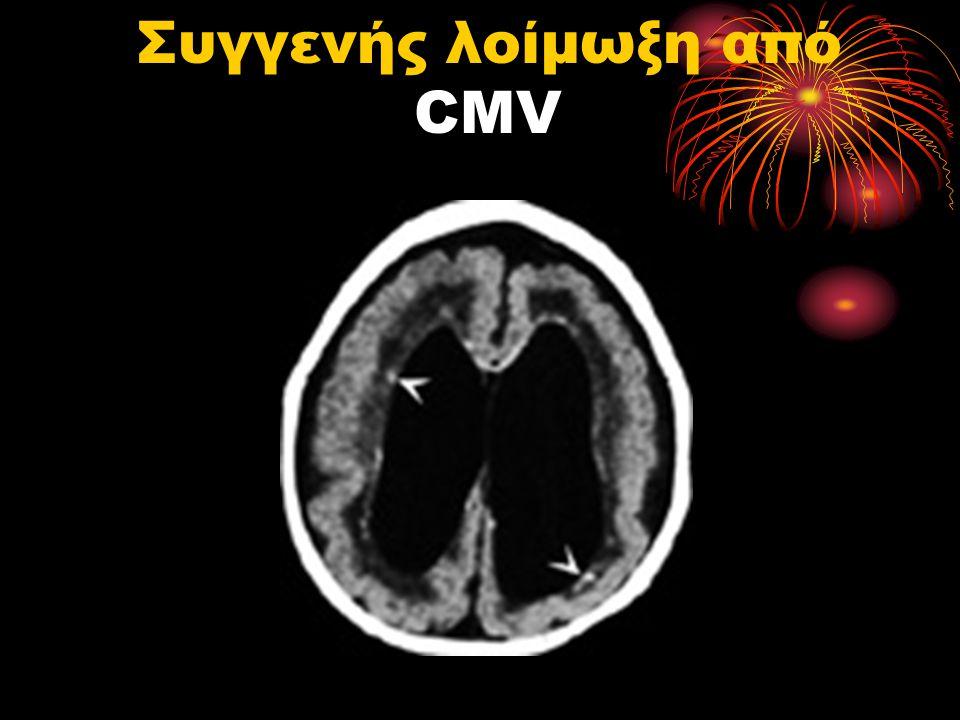 Συγγενής λοίμωξη από CMV
