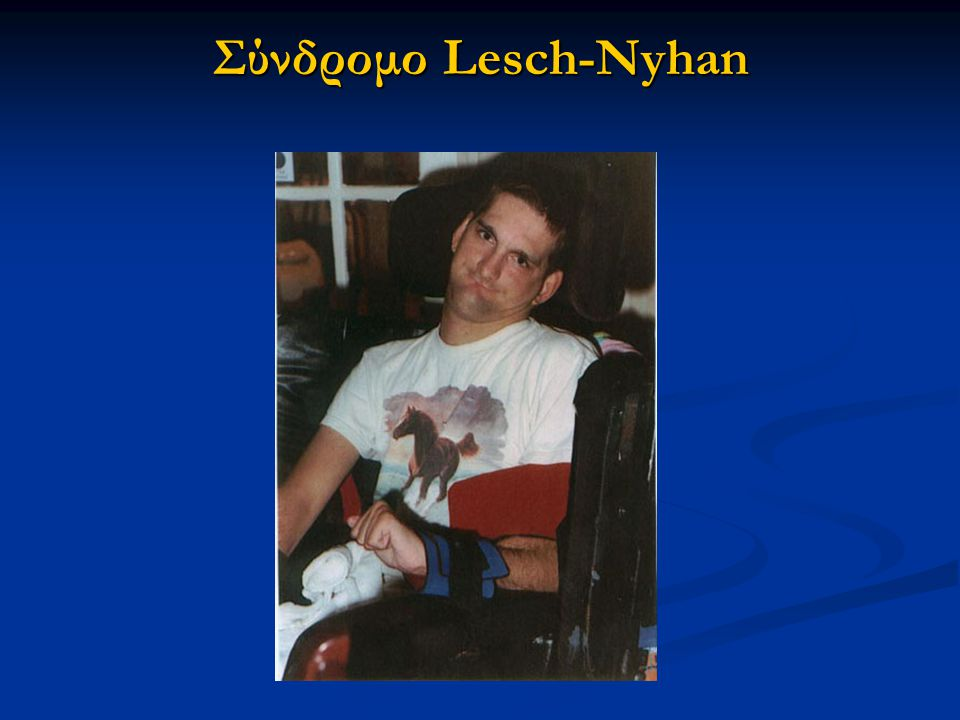 Σύνδρομο Lesch-Nyhan