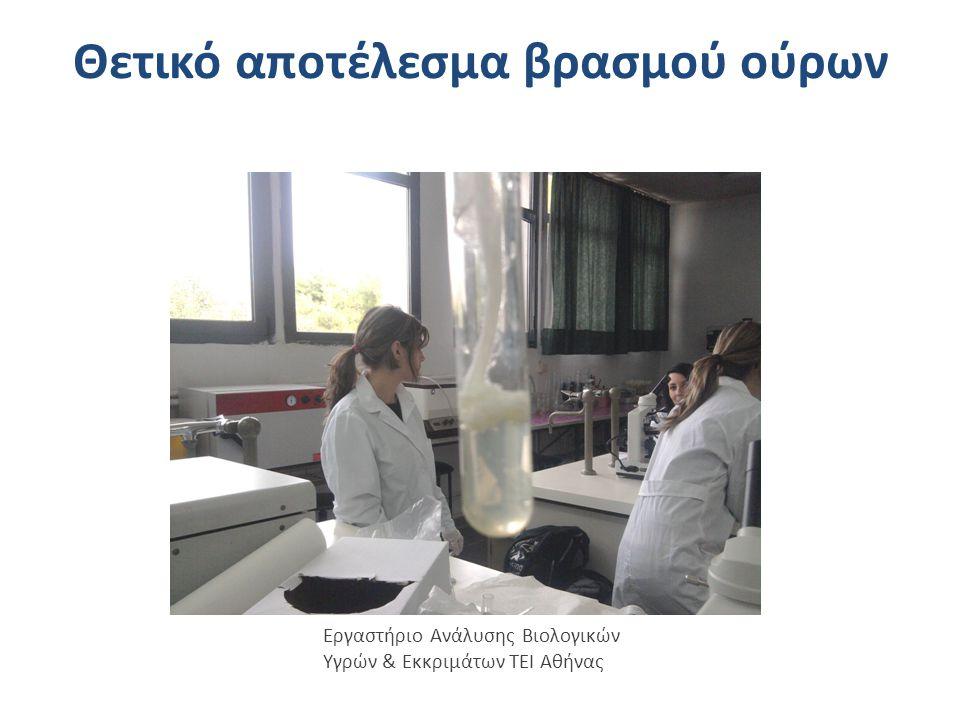 Ημιποσοτικός προσδιορισμός λευκώματος με θειοσαλικυλικό οξύ