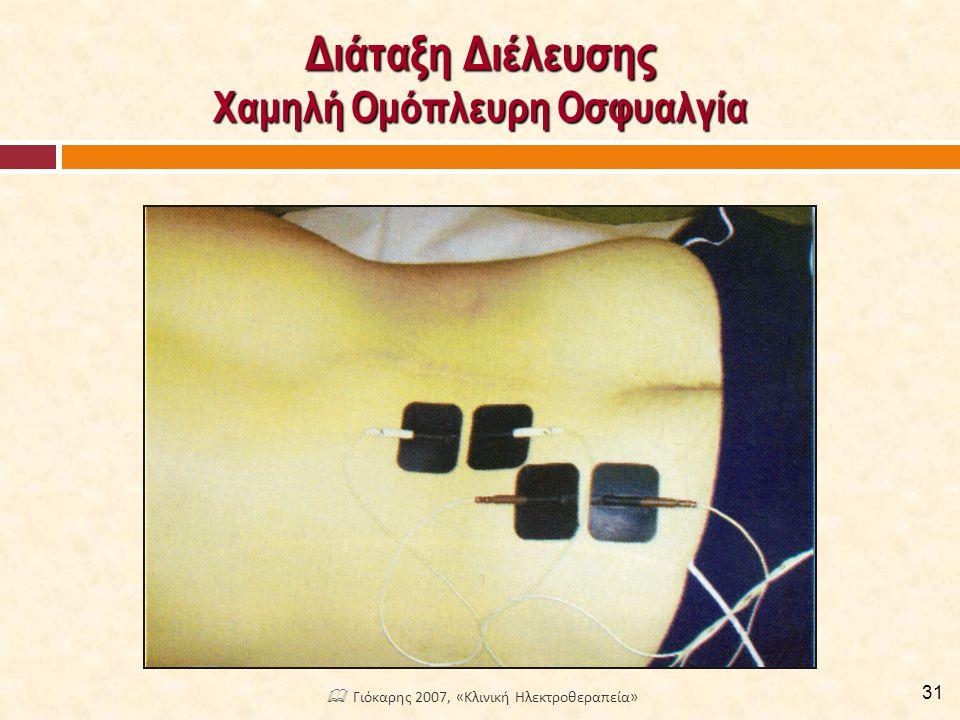 Διάταξη Διέλευσης Ομόπλευρη Οσφυοϊσχιαλγία