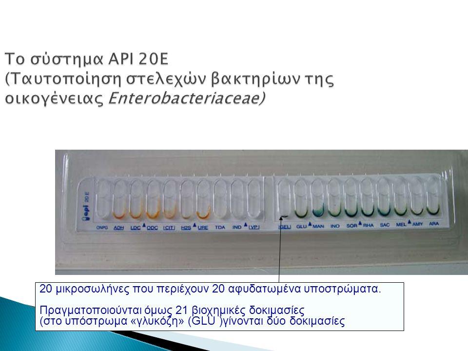 Το σύστημα API 20E (Ταυτοποίηση στελεχών βακτηρίων της οικογένειας Enterobacteriaceae)