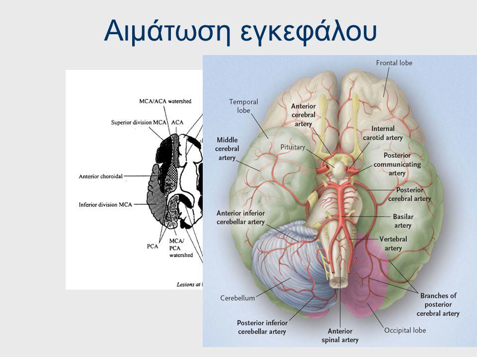 Αιμάτωση εγκεφάλου