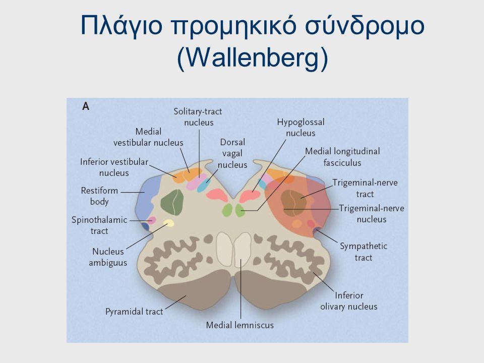 Πλάγιο προμηκικό σύνδρομο (Wallenberg)