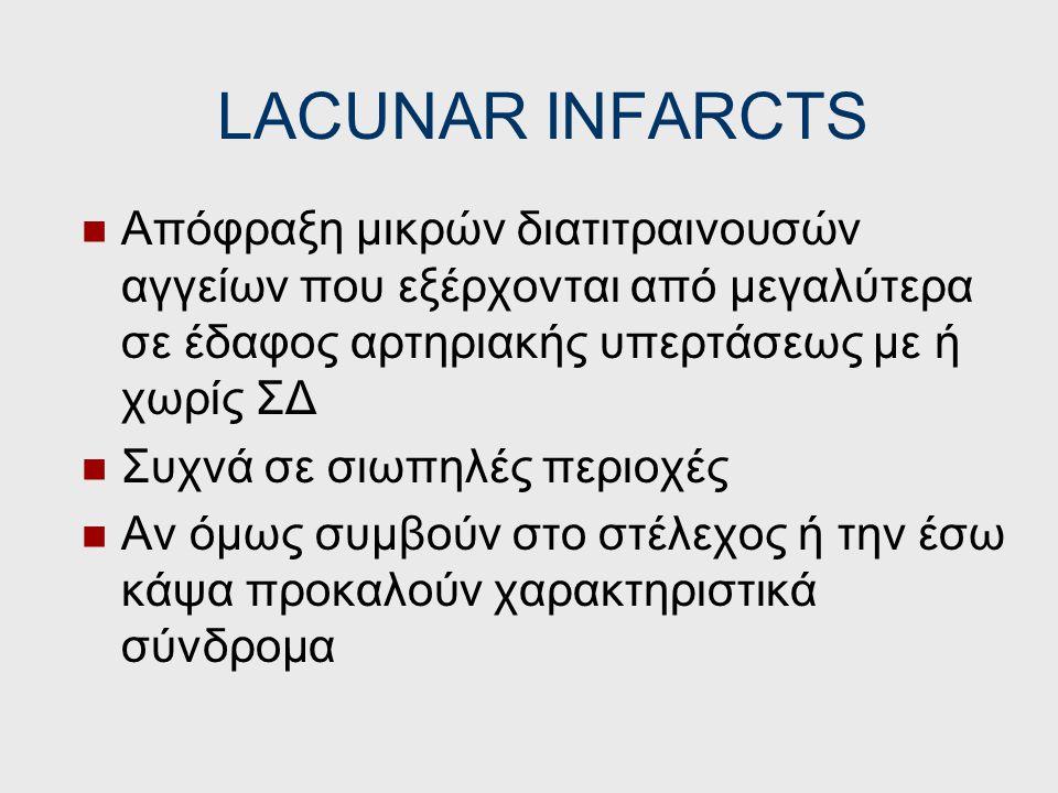 LACUNAR INFARCTS Απόφραξη μικρών διατιτραινουσών αγγείων που εξέρχονται από μεγαλύτερα σε έδαφος αρτηριακής υπερτάσεως με ή χωρίς ΣΔ.