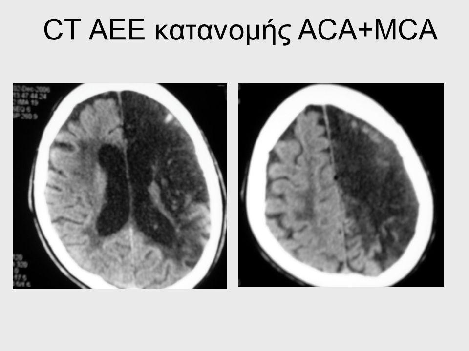 CT ΑΕΕ κατανομής ACA+MCA
