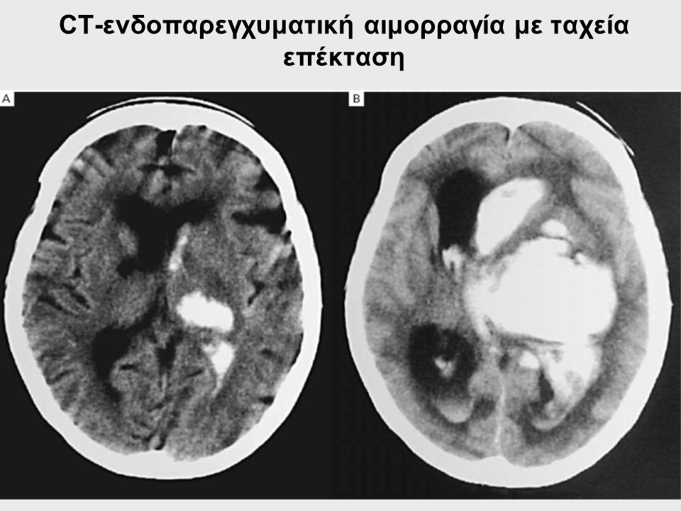 CT-ενδοπαρεγχυματική αιμορραγία με ταχεία επέκταση