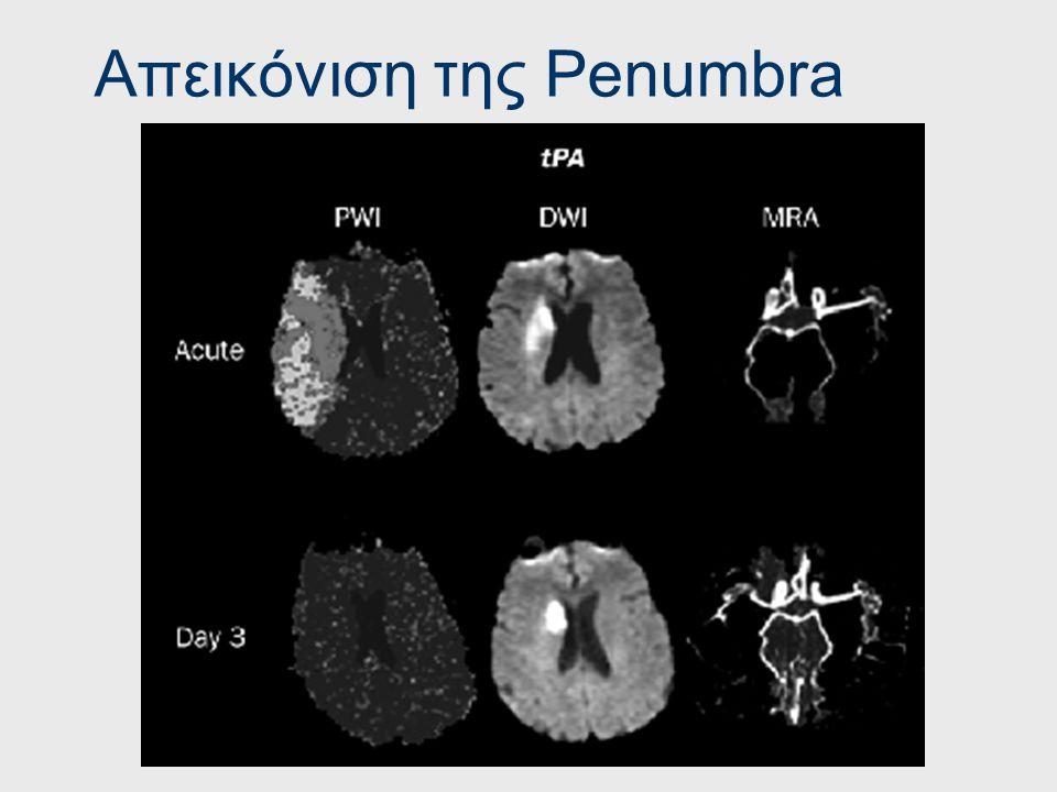 Απεικόνιση της Penumbra