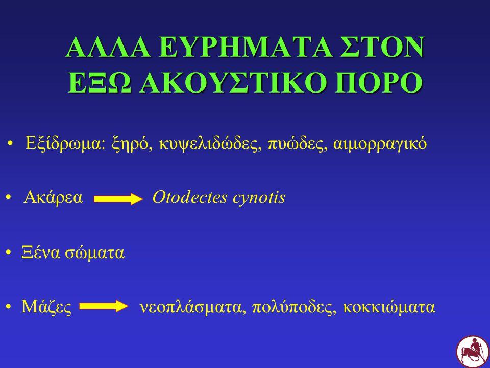 ΑΛΛΑ ΕΥΡΗΜΑΤΑ ΣΤΟΝ ΕΞΩ ΑΚΟΥΣΤΙΚΟ ΠΟΡΟ