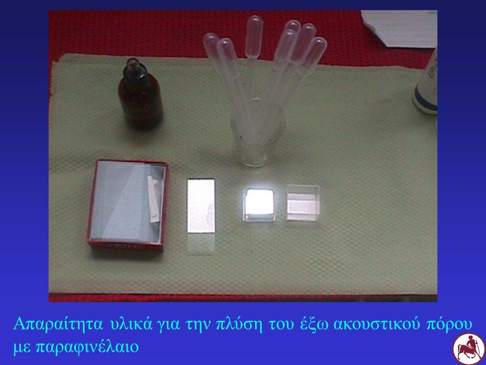 Απαραίτητα υλικά για την πλύση του έξω ακουστικού πόρου με παραφινέλαιο