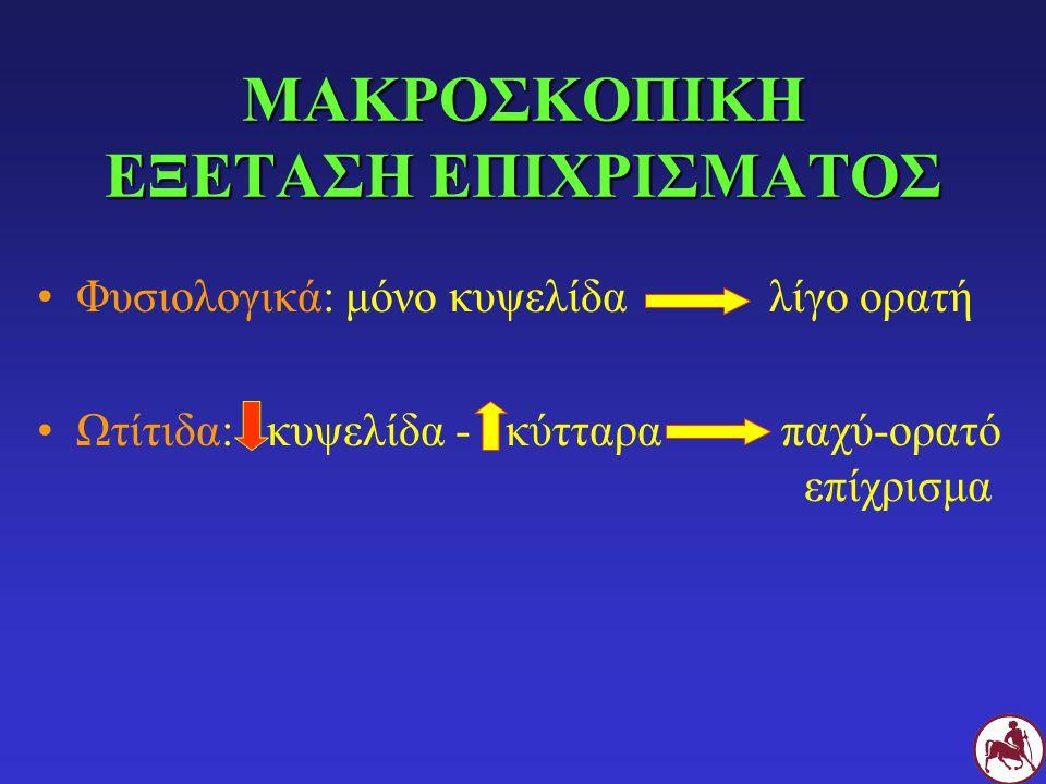 ΜΑΚΡΟΣΚΟΠΙΚΗ ΕΞΕΤΑΣΗ ΕΠΙΧΡΙΣΜΑΤΟΣ