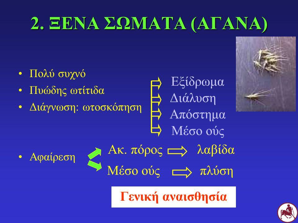 2. ΞΕΝΑ ΣΩΜΑΤΑ (ΑΓΑΝΑ) Εξίδρωμα Διάλυση Απόστημα Μέσο ούς