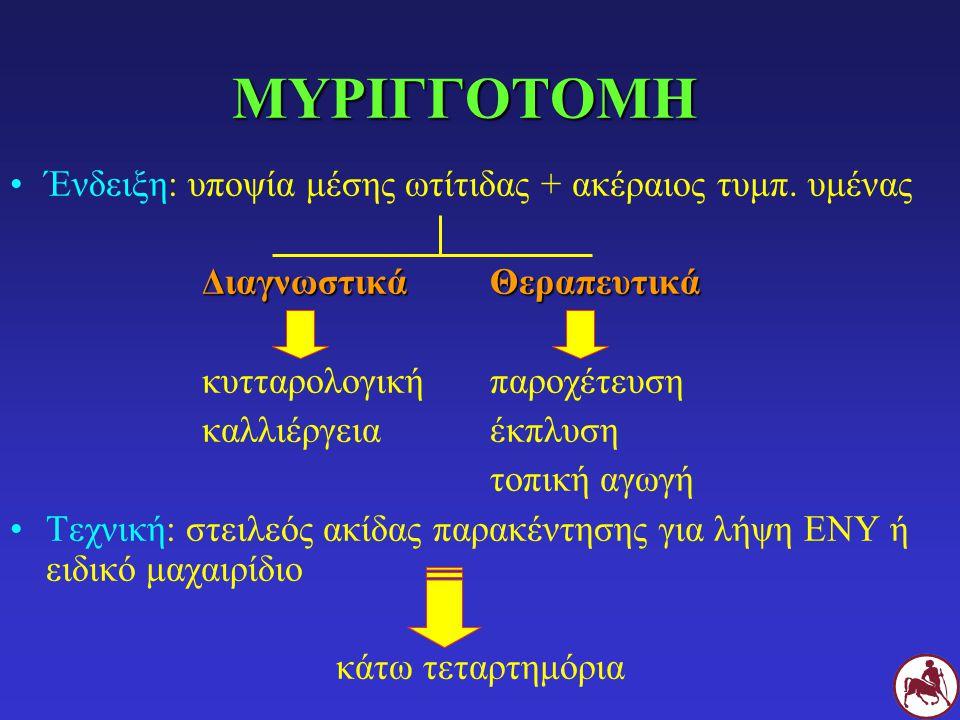 ΜΥΡΙΓΓΟΤΟΜΗ Ένδειξη: υποψία μέσης ωτίτιδας + ακέραιος τυμπ. υμένας