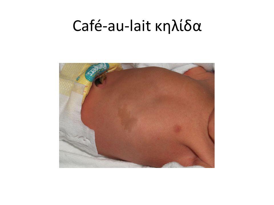 Café-au-lait κηλίδα