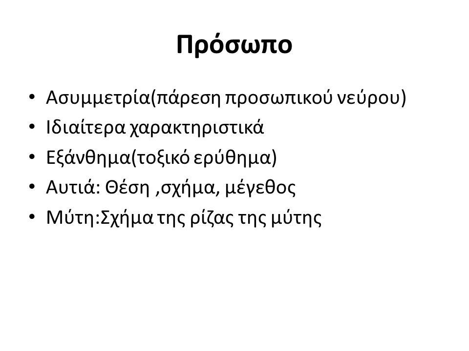 Πρόσωπο Ασυμμετρία(πάρεση προσωπικού νεύρου) Ιδιαίτερα χαρακτηριστικά
