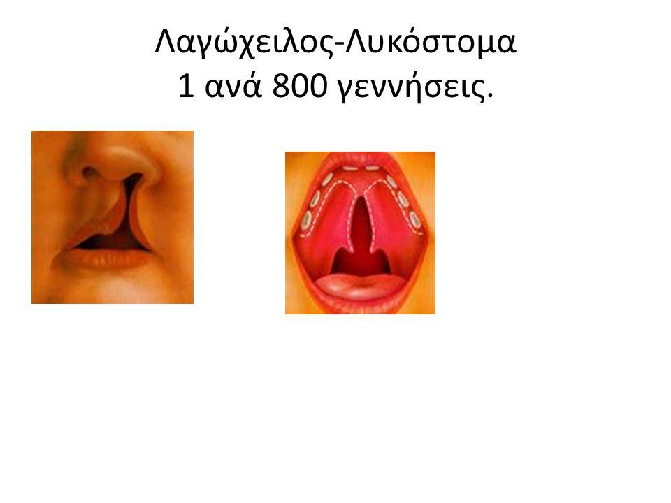 Λαγώχειλος-Λυκόστομα 1 ανά 800 γεννήσεις.