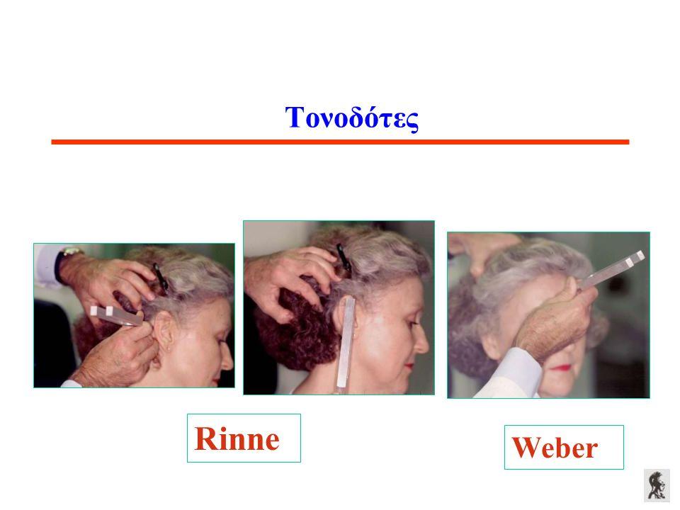 Τονοδότες Rinne Weber