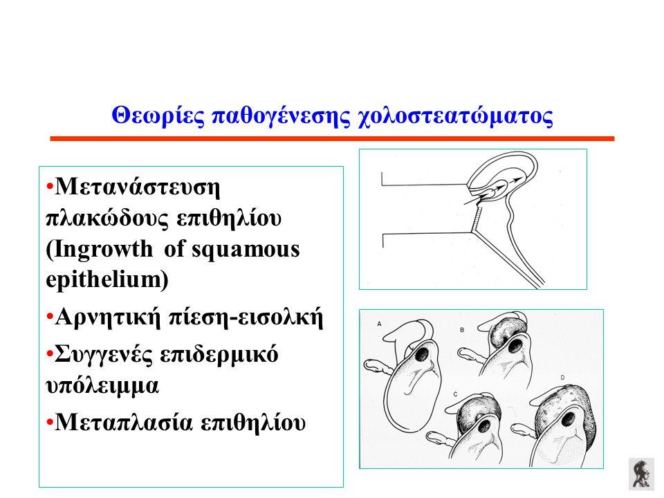 Θεωρίες παθογένεσης χολοστεατώματος