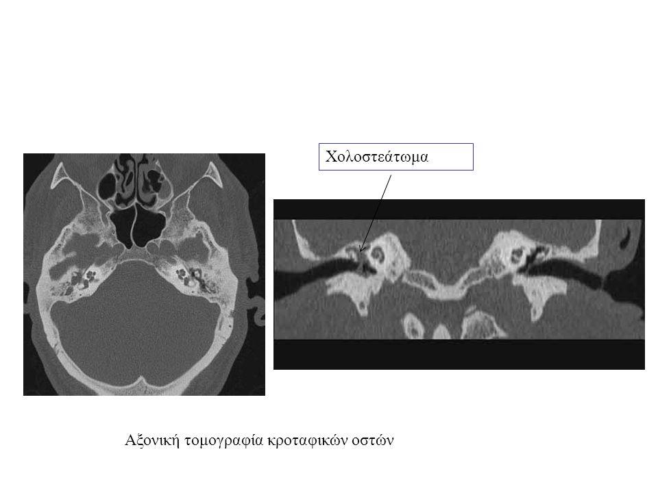 Χολοστεάτωμα Αξονική τομογραφία κροταφικών οστών