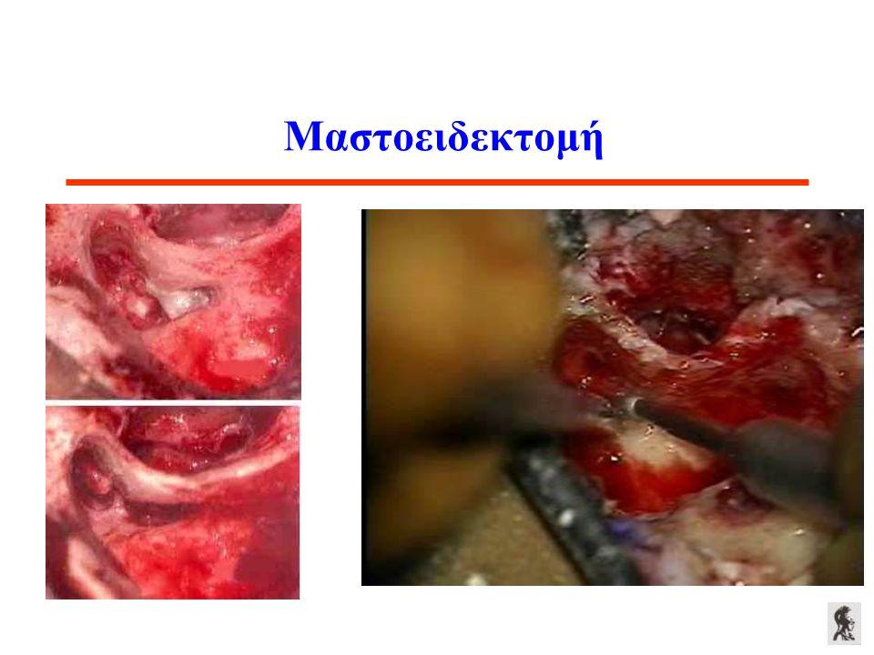 Μαστοειδεκτομή