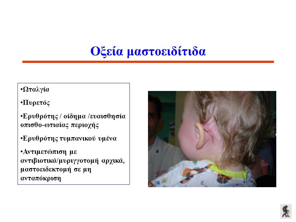 Οξεία μαστοειδίτιδα Ωταλγία Πυρετός