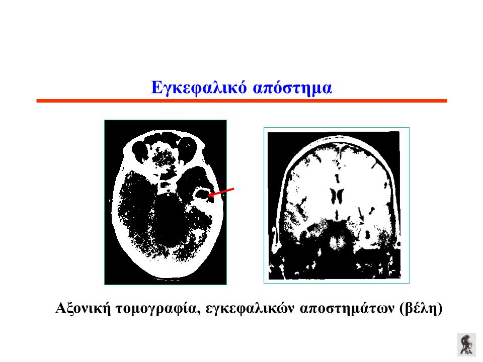 Αξονική τομογραφία, εγκεφαλικών αποστημάτων (βέλη)