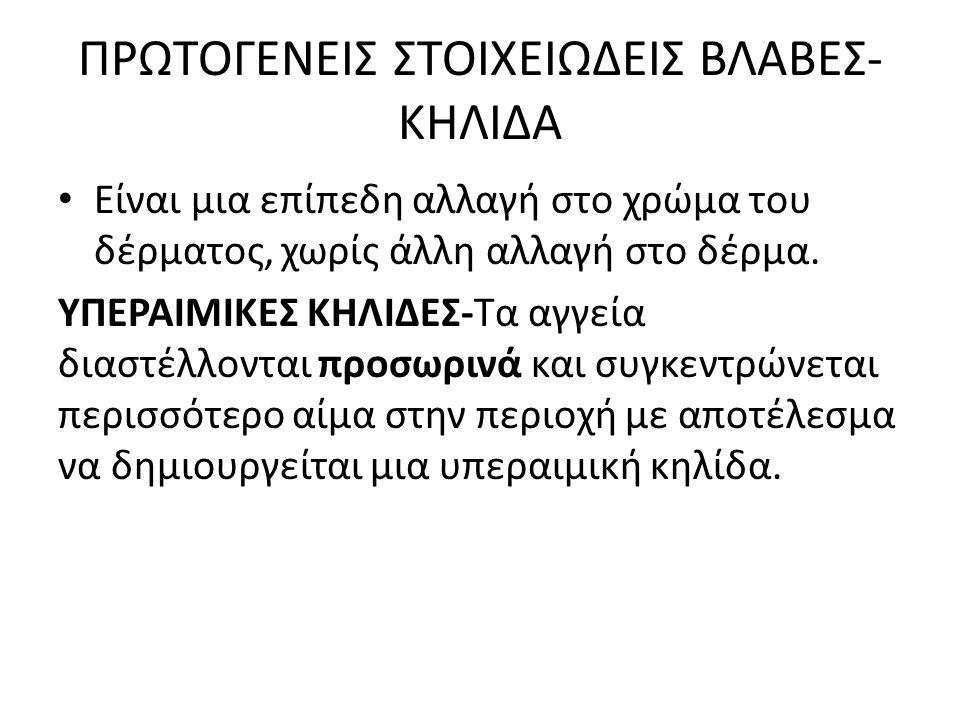 ΠΡΩΤΟΓΕΝΕΙΣ ΣΤΟΙΧΕΙΩΔΕΙΣ ΒΛΑΒΕΣ-ΚΗΛΙΔΑ