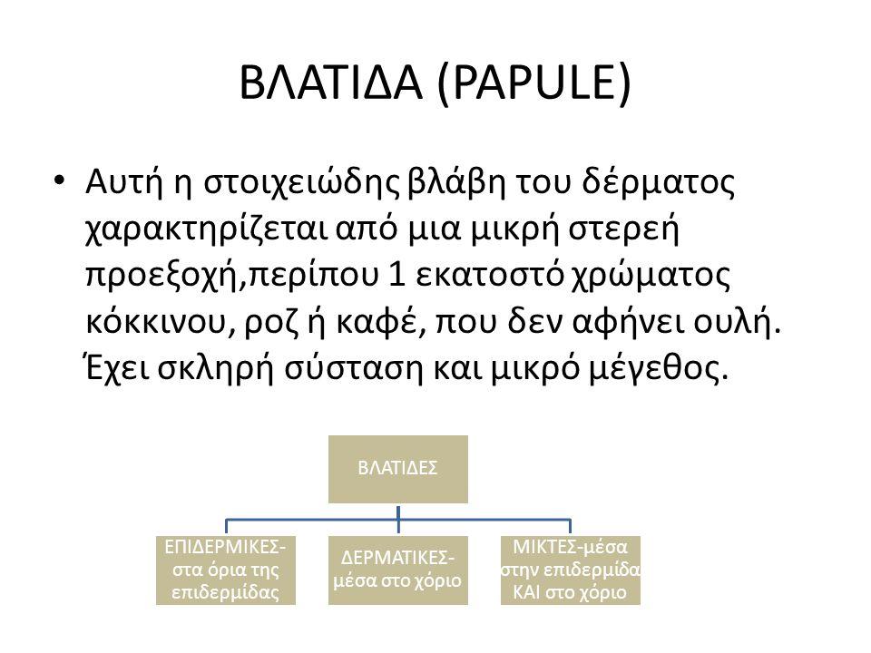 ΒΛΑΤΙΔΑ (PAPULE)
