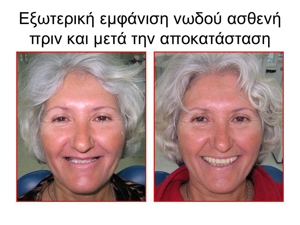 Εξωτερική εμφάνιση νωδού ασθενή πριν και μετά την αποκατάσταση