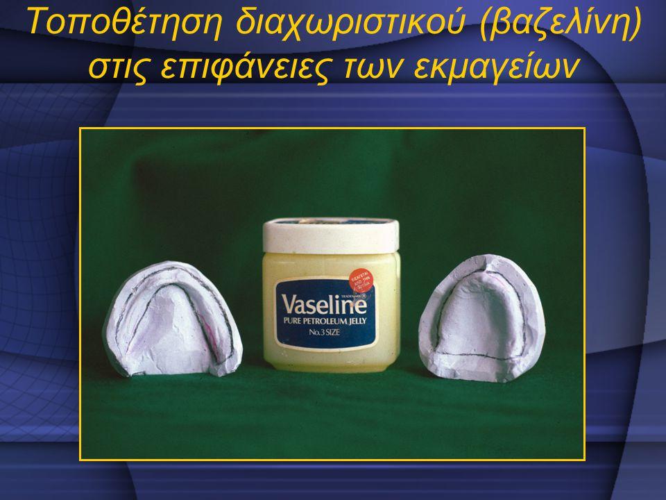 Τοποθέτηση διαχωριστικού (βαζελίνη) στις επιφάνειες των εκμαγείων