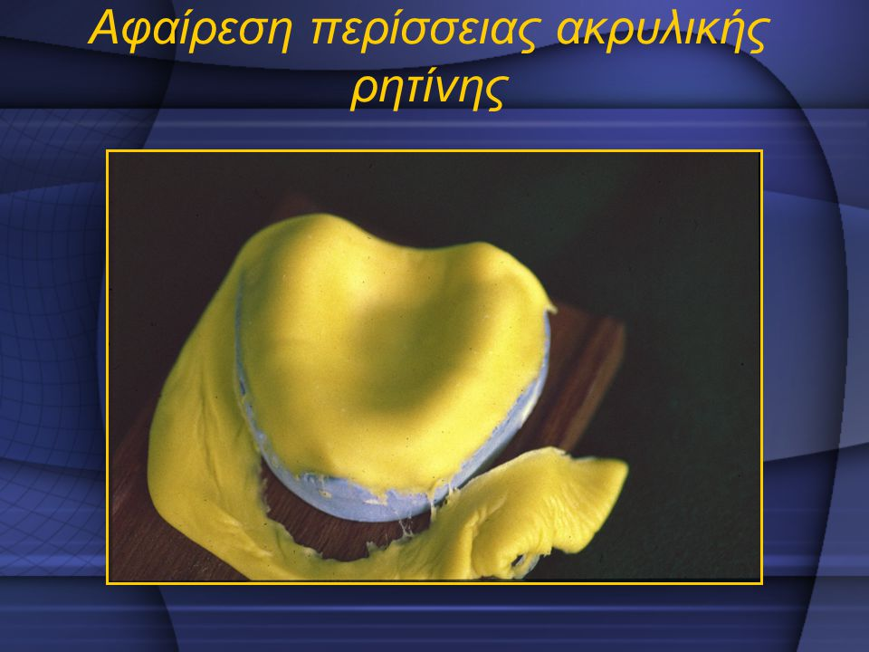 Αφαίρεση περίσσειας ακρυλικής ρητίνης