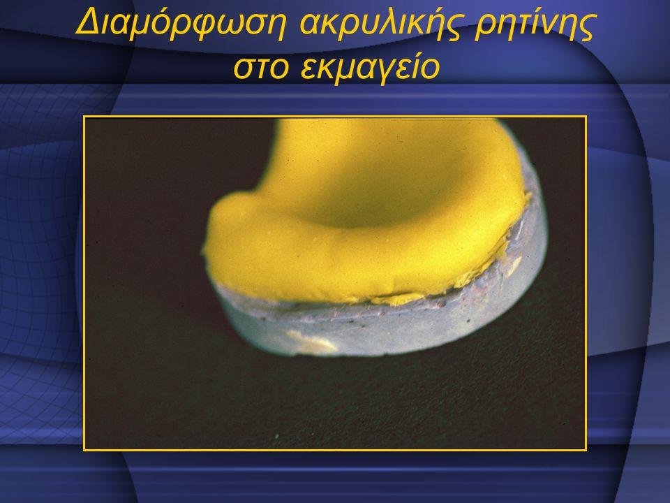 Διαμόρφωση ακρυλικής ρητίνης στο εκμαγείο