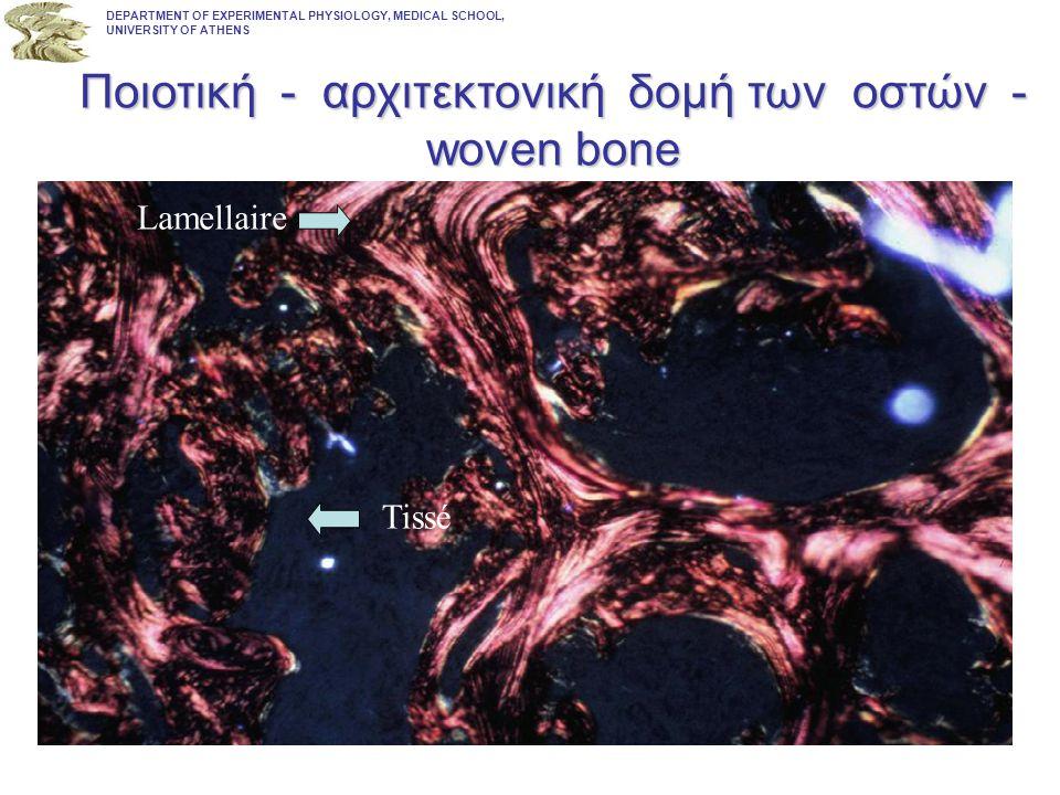 Ποιοτική - αρχιτεκτονική δομή των οστών - woven bone
