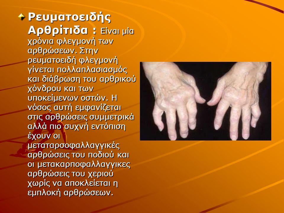 Ρευματοειδής Αρθρίτιδα : Είναι μία χρόνια φλεγμονή των αρθρώσεων