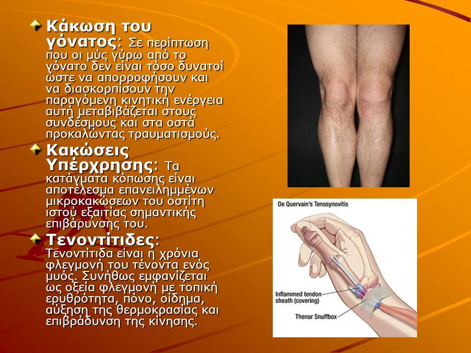 Κάκωση του γόνατος: Σε περίπτωση που οι μύς γύρω από το γόνατο δεν είναι τόσο δυνατοί ώστε να απορροφήσουν και να διασκορπίσουν την παραγόμενη κινητική ενέργεια αυτή μεταβιβάζεται στους συνδέσμους και στα οστά προκαλώντας τραυματισμούς.