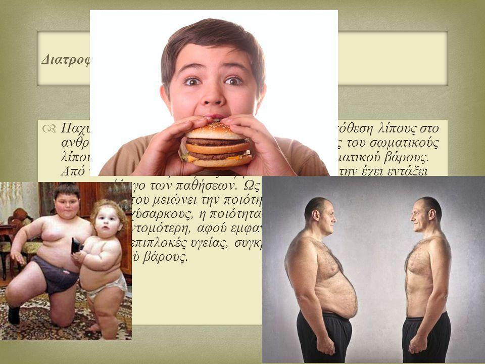 Διατροφή και παχυσαρκία