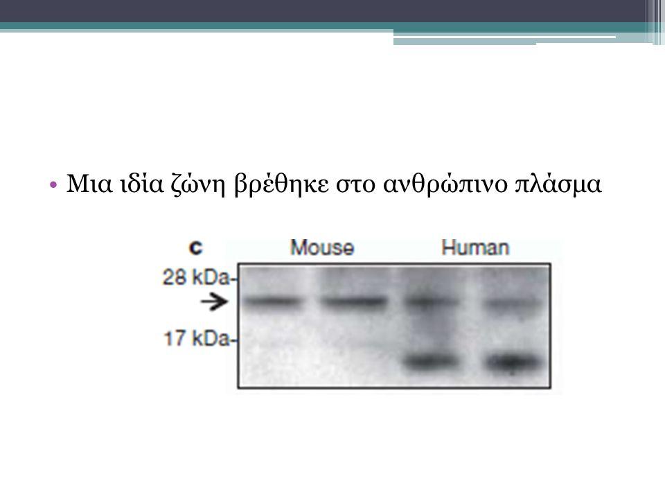Μια ιδία ζώνη βρέθηκε στο ανθρώπινο πλάσμα