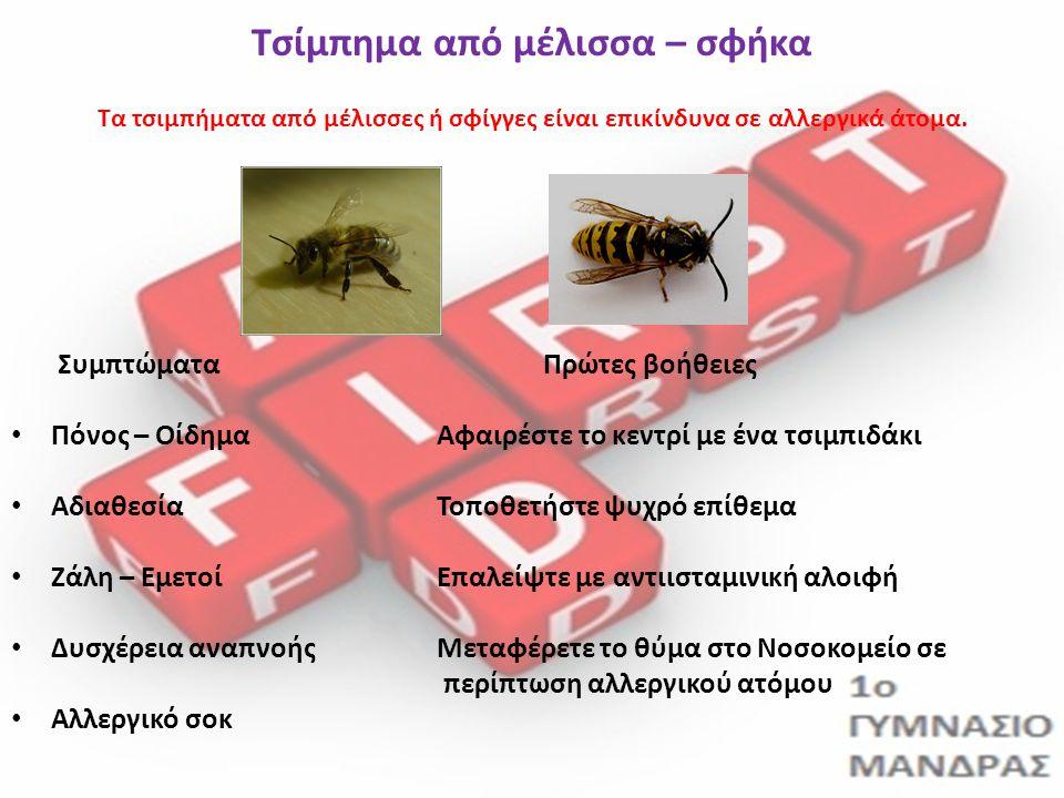 Τσίμπημα από μέλισσα – σφήκα