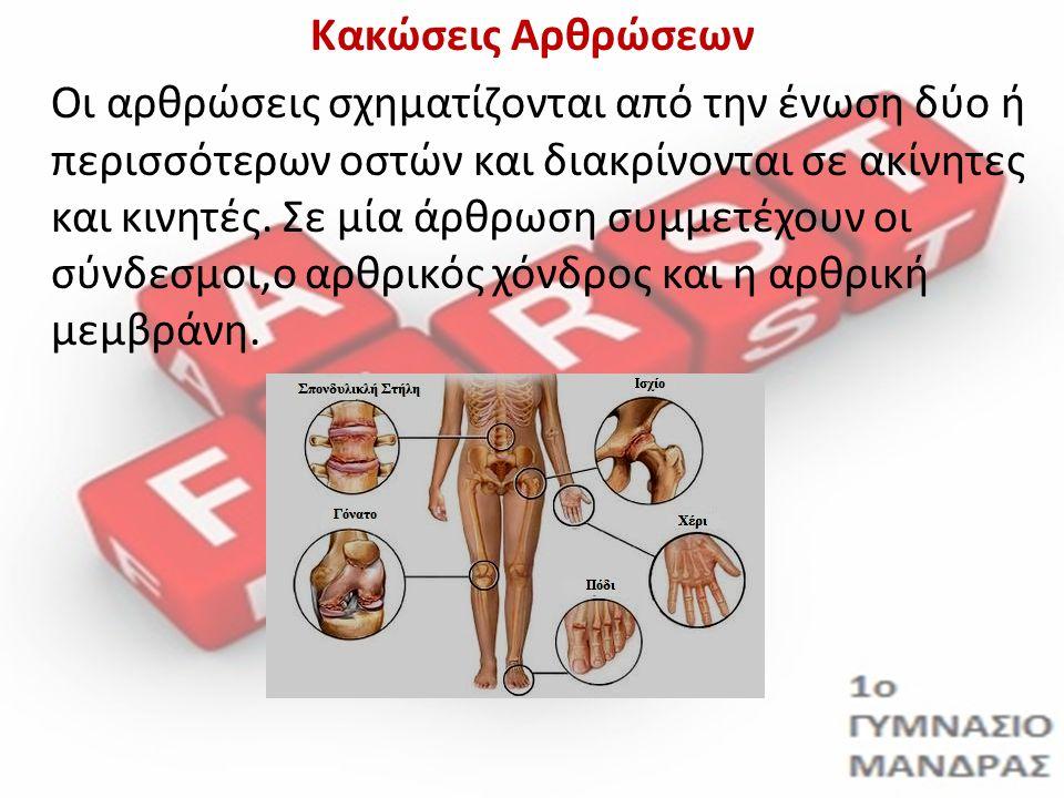 Κακώσεις Αρθρώσεων Οι αρθρώσεις σχηματίζονται από την ένωση δύο ή περισσότερων οστών και διακρίνονται σε ακίνητες και κινητές.