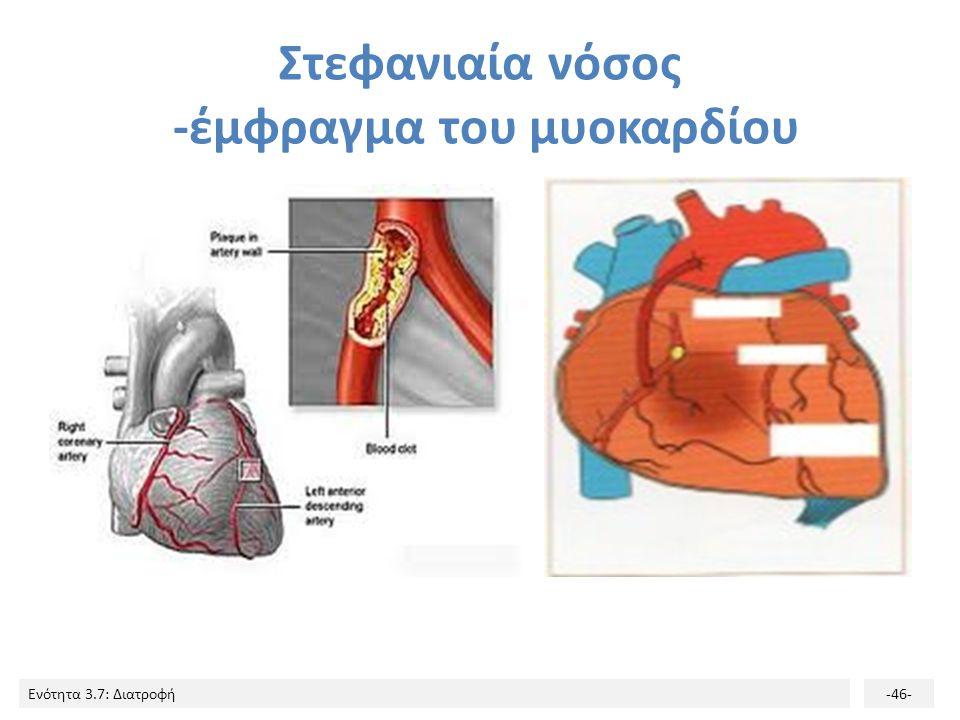 Στεφανιαία νόσος -έμφραγμα του μυοκαρδίου