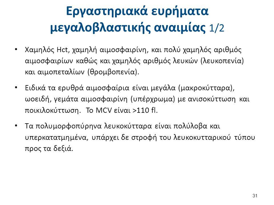 Εργαστηριακά ευρήματα μεγαλοβλαστικής αναιμίας 2/2
