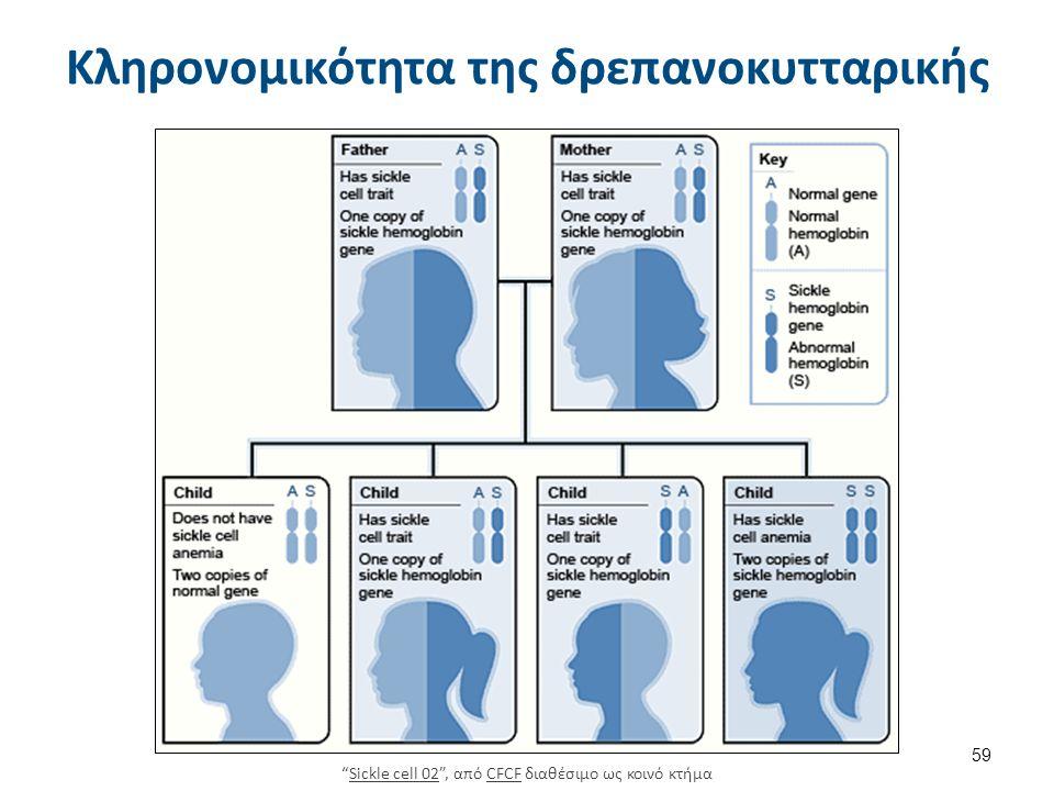 Δρεπανοκυτταρική αναιμία-μορφολογία ερυθρών