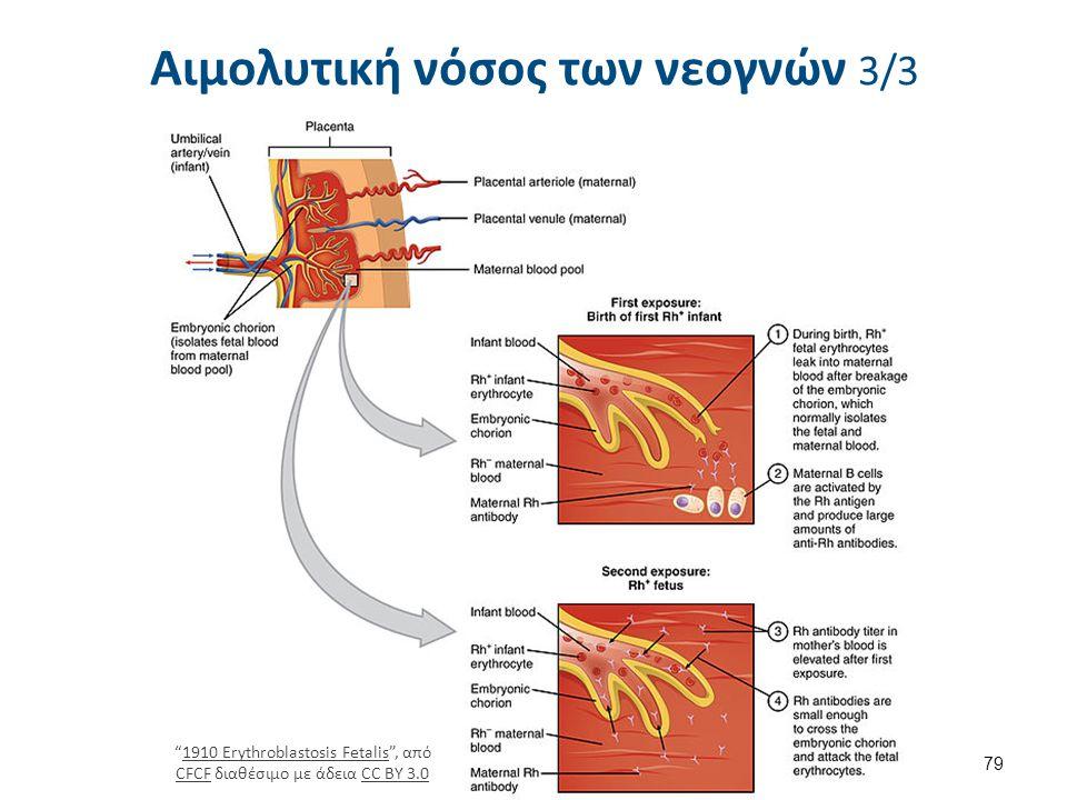 Μικροαγγειοπαθητική αιμολυτική αναιμία