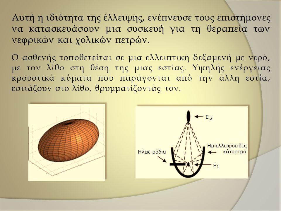 Αυτή η ιδιότητα της έλλειψης, ενέπνευσε τους επιστήμονες να κατασκευάσουν μια συσκευή για τη θεραπεία των νεφρικών και χολικών πετρών.