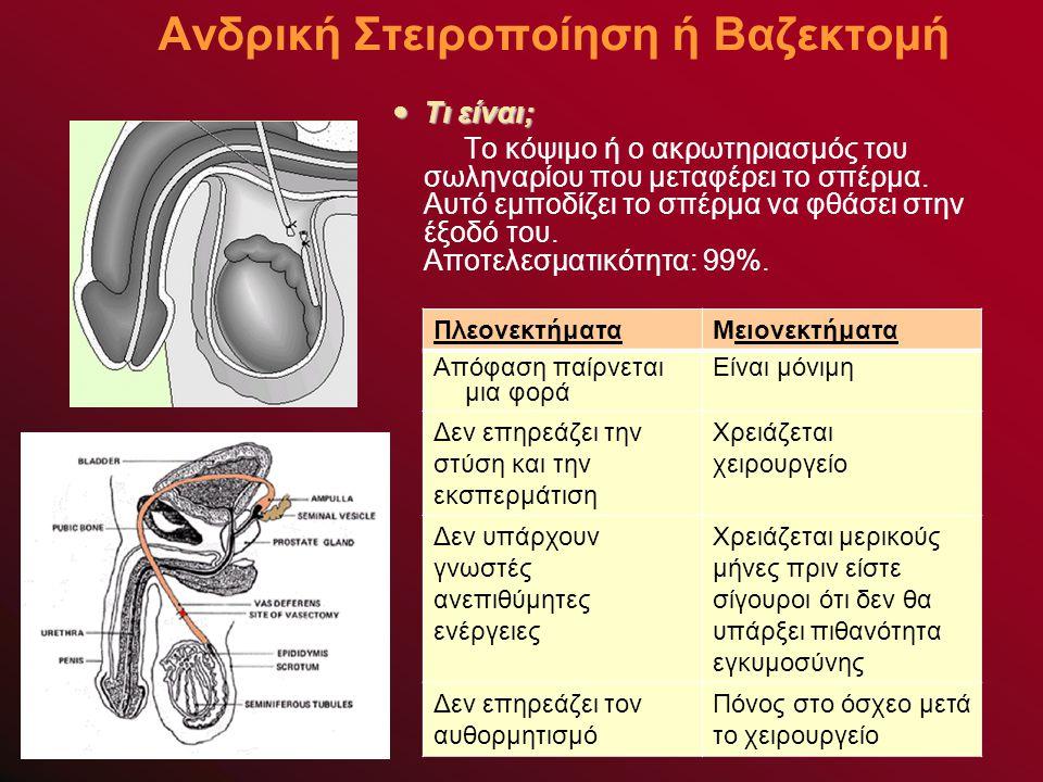 Ανδρική Στειροποίηση ή Βαζεκτομή